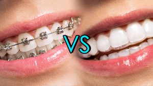 Metal Braces Or Invisalign